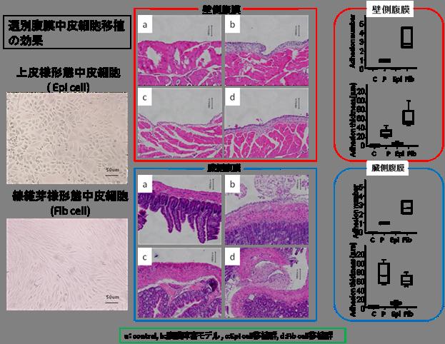 腹膜透析・腹膜癒着に対する新細胞治療の開発 - 国立大学法人 岡山大学