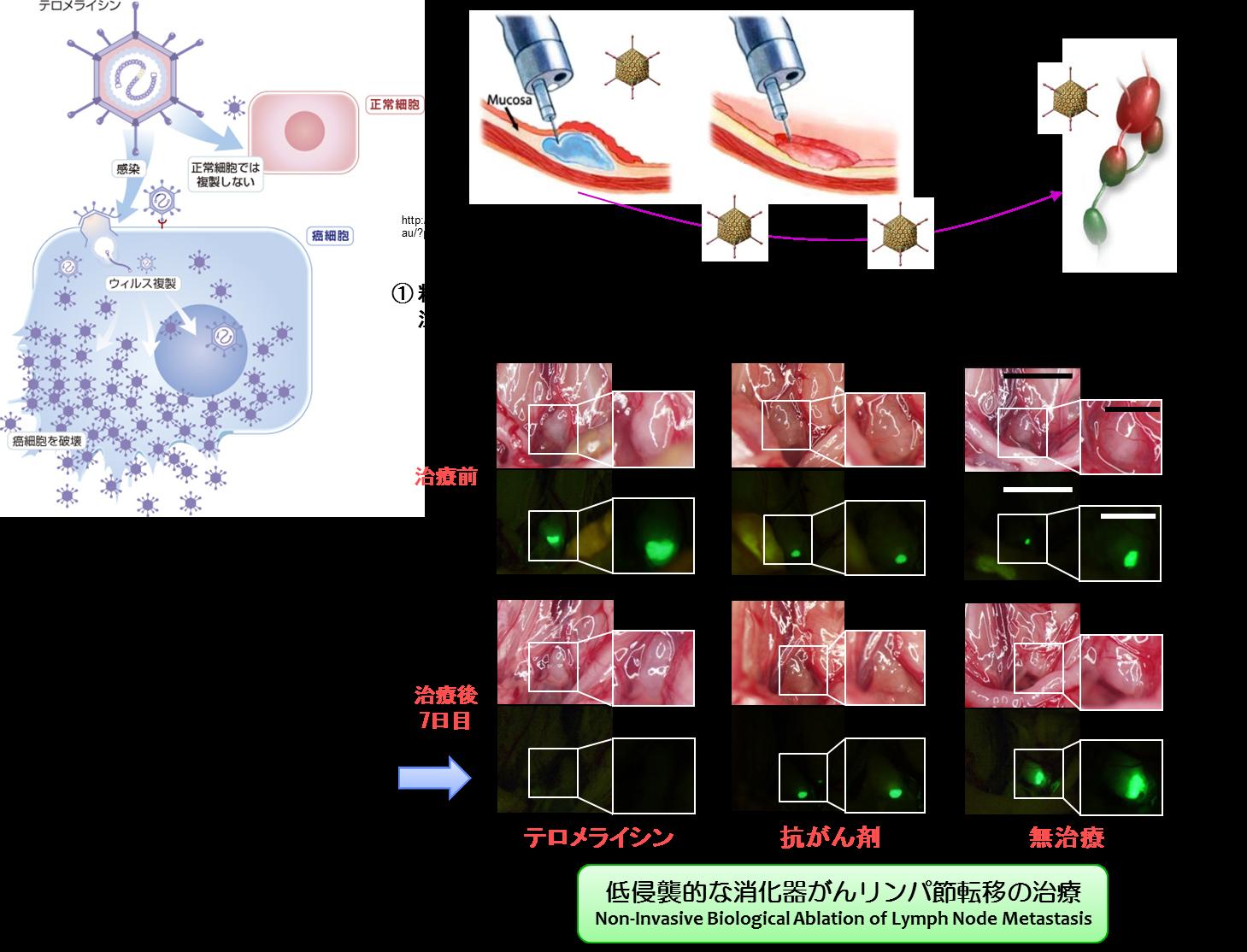 図:低侵襲的な消化器がんリンパ節転移の治療